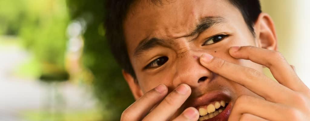 子供たちが十代のにきびを「追いかける」のを助ける方法をお母さんに教えてください