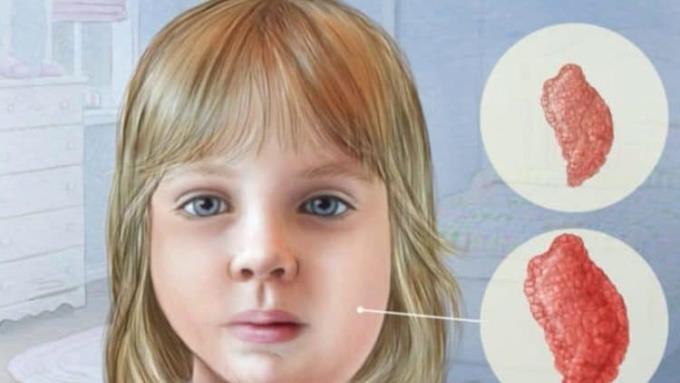 子供のおたふく風邪:親は過小評価されるべきではありません